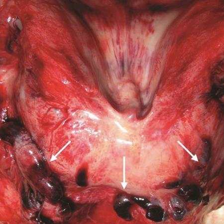 Covid-19 : ce que les autopsies nous apprennent sur les caillots sanguins et embolies pulmonaires
